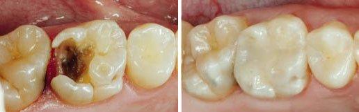 6aars-tand-caries-plastfyldning-tandlaegeforeningen