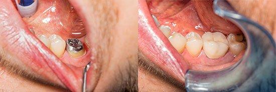 6 års tand før og efter cementering af en metalkeramik krone.