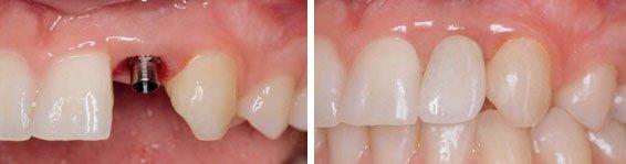 Implantat før og efter montering af tandkrone