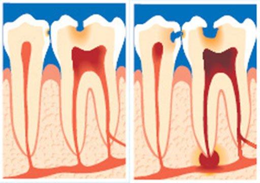 Tand med nervebetændelse/tand med rodspidsbetændelse.